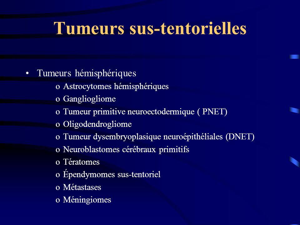 Tumeurs sus-tentorielles