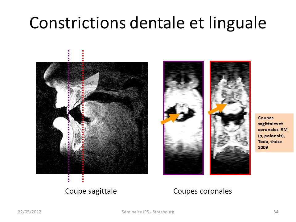 Constrictions dentale et linguale