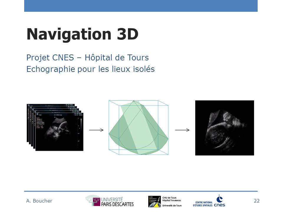 Navigation 3D Projet CNES – Hôpital de Tours