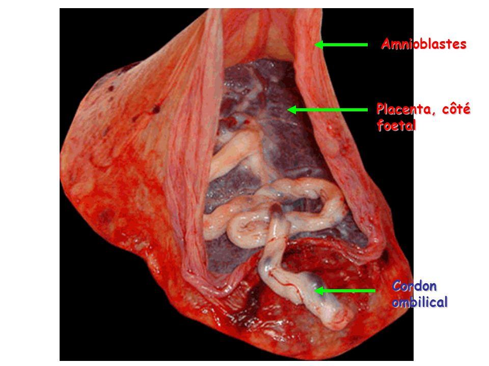 Amnioblastes Placenta, côté foetal Cordon ombilical