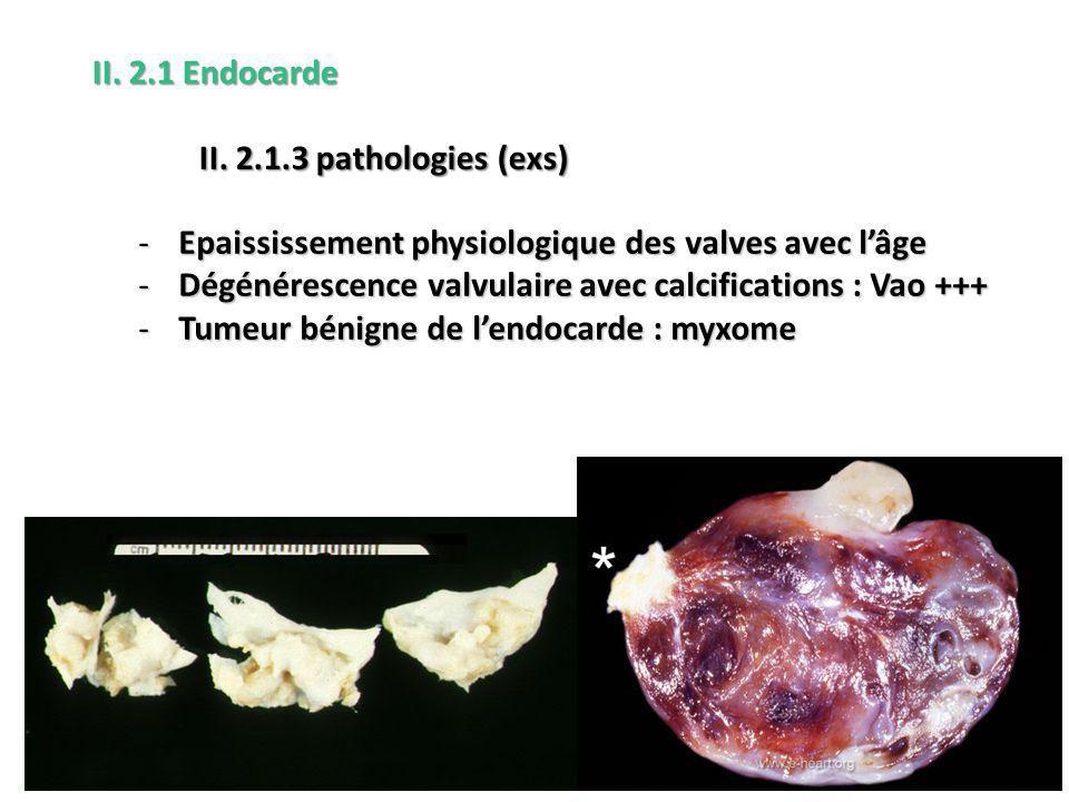 II. 2.1 Endocarde II. 2.1.3 pathologies (exs) Epaississement physiologique des valves avec l'âge.