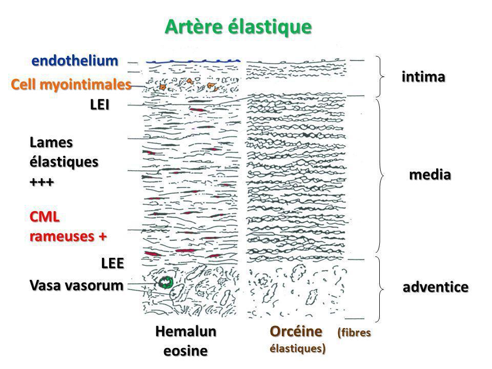 Artère élastique endothelium intima media adventice Cell myointimales
