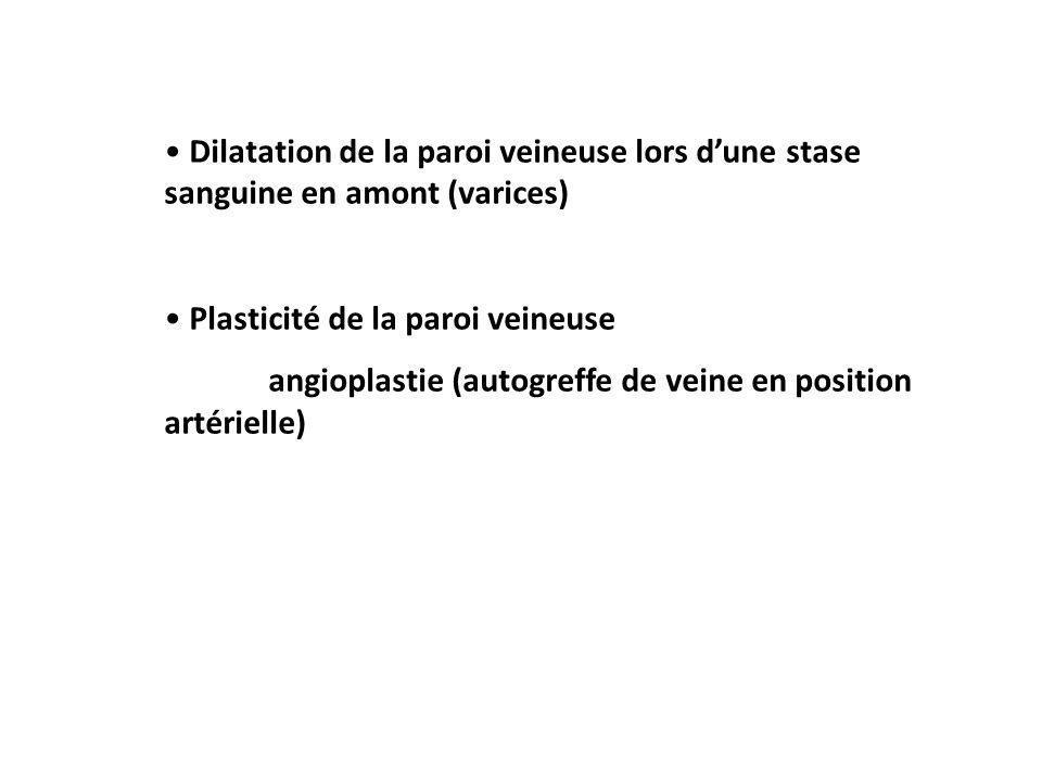 Dilatation de la paroi veineuse lors d'une stase sanguine en amont (varices)