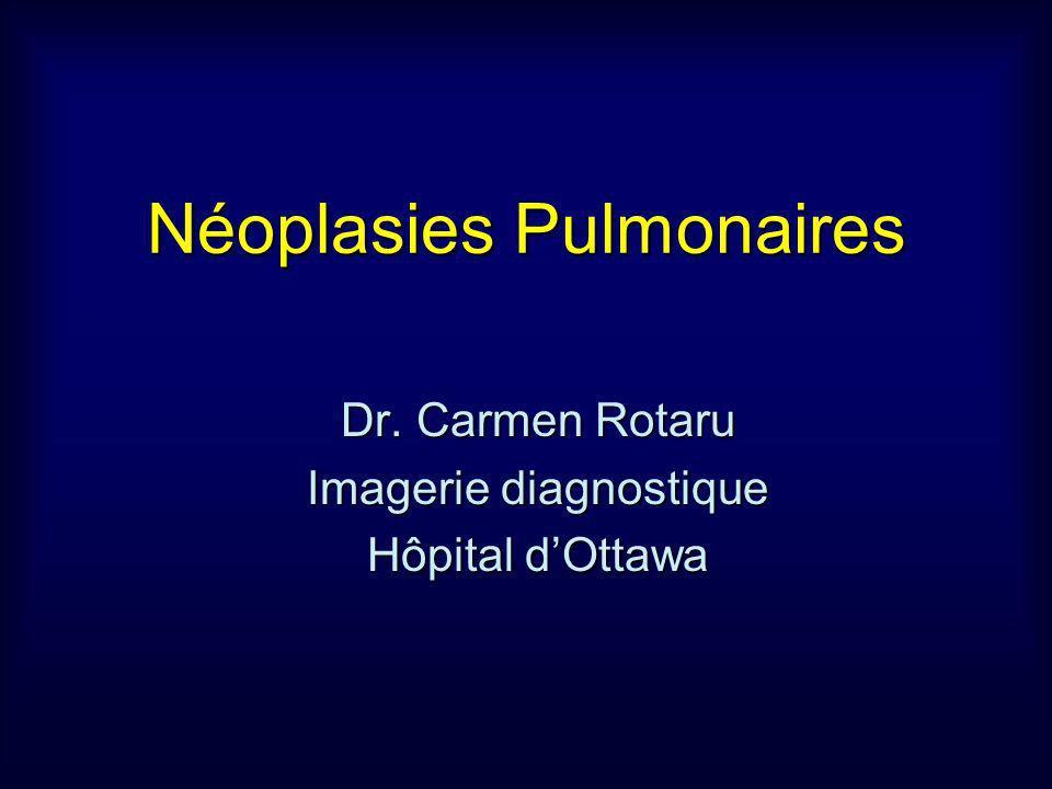 Néoplasies Pulmonaires