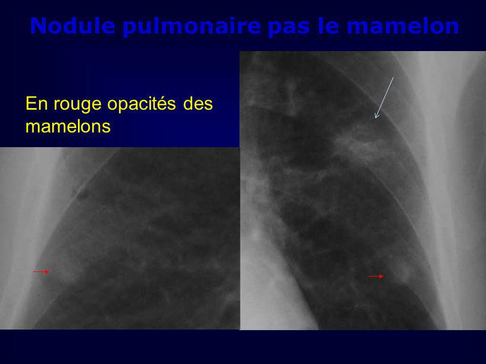 Nodule pulmonaire pas le mamelon