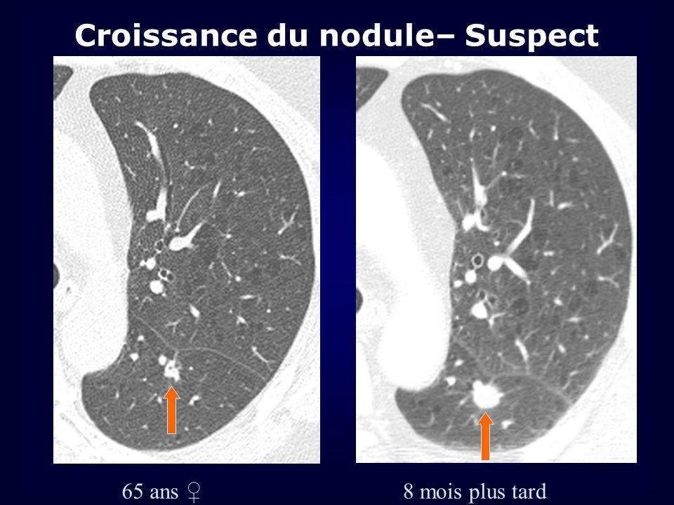 Croissance du nodule– Suspect