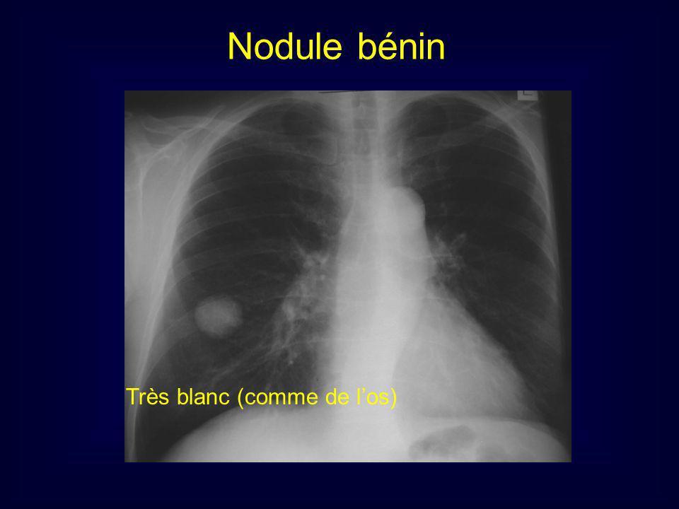 Nodule bénin Très blanc (comme de l'os) 17