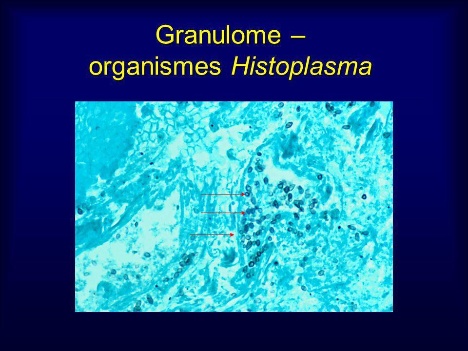 Granulome – organismes Histoplasma