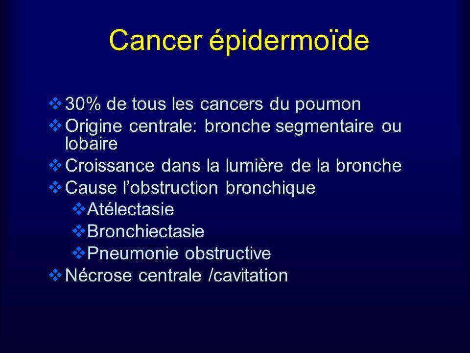 Cancer épidermoïde 30% de tous les cancers du poumon