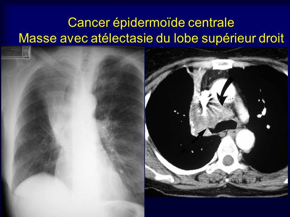 Cancer épidermoïde centrale Masse avec atélectasie du lobe supérieur droit