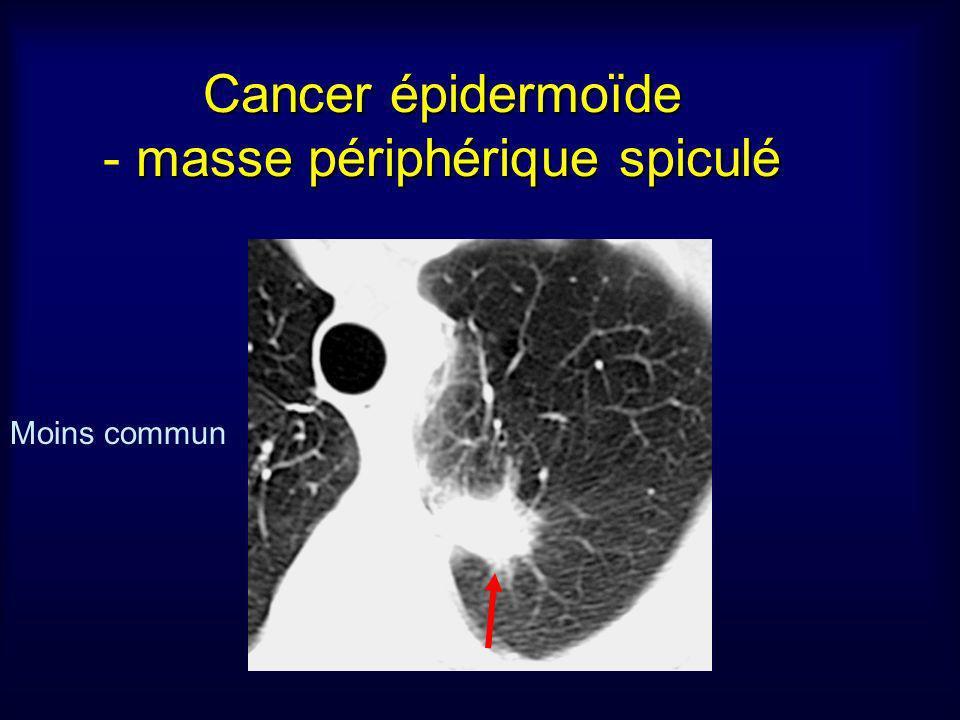 Cancer épidermoïde - masse périphérique spiculé
