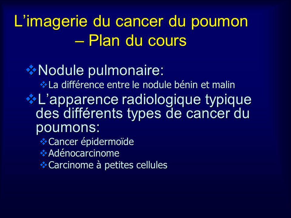 L'imagerie du cancer du poumon – Plan du cours