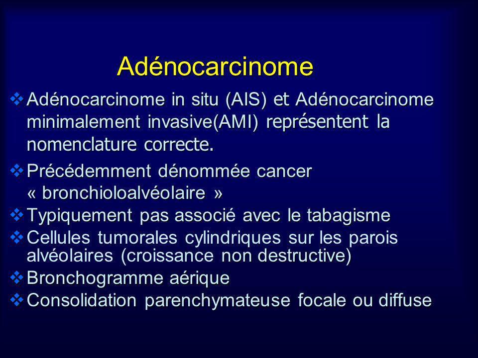Adénocarcinome Adénocarcinome in situ (AIS) et Adénocarcinome minimalement invasive(AMI) représentent la nomenclature correcte.