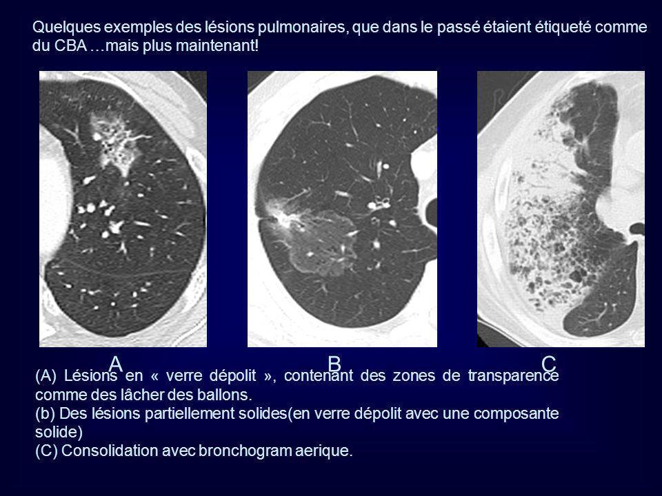 Quelques exemples des lésions pulmonaires, que dans le passé étaient étiqueté comme du CBA …mais plus maintenant!