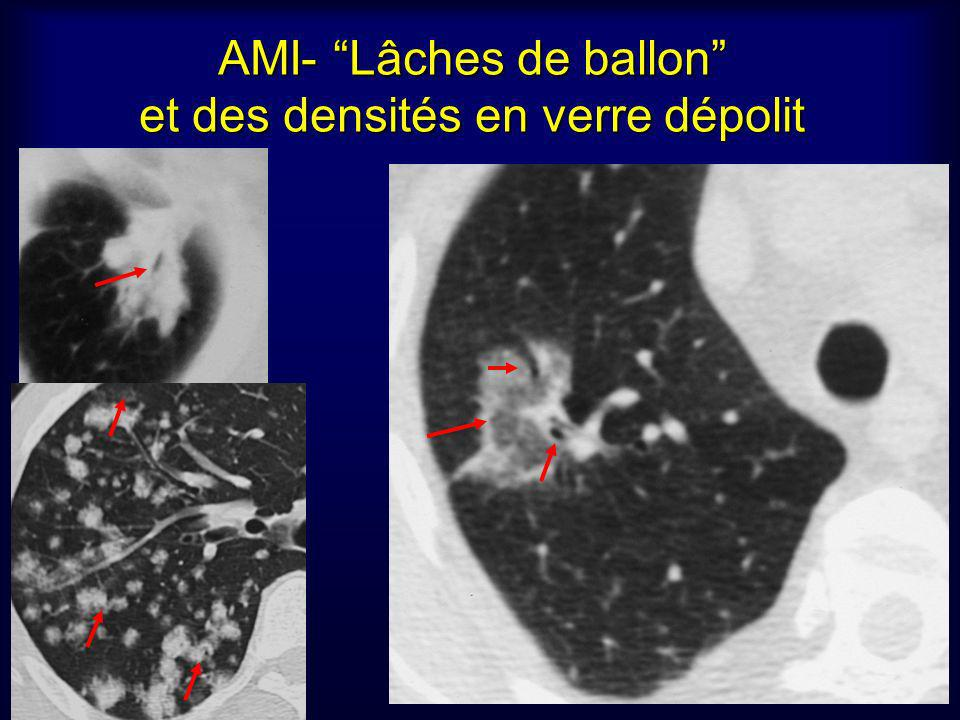 AMI- Lâches de ballon et des densités en verre dépolit