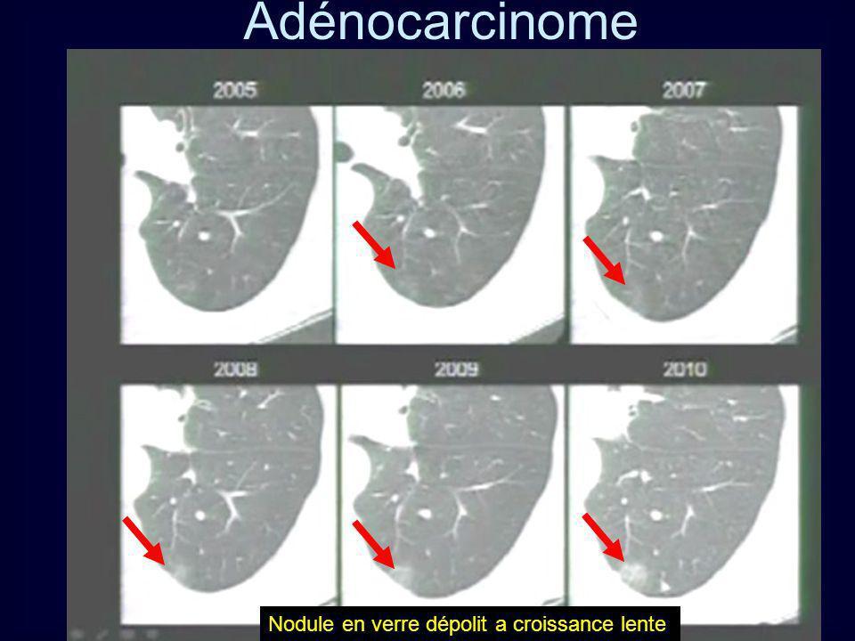 Adénocarcinome Nodule en verre dépolit a croissance lente