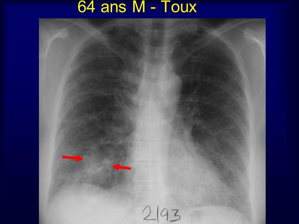 64 ans M - Toux