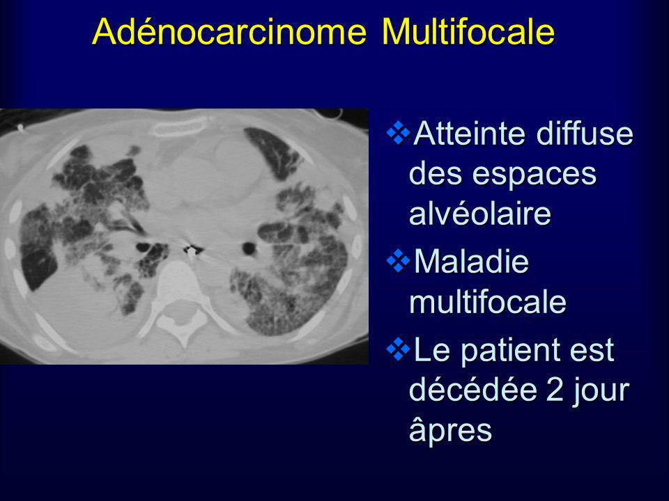 Adénocarcinome Multifocale