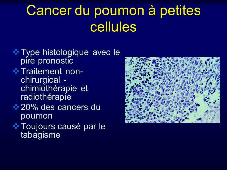 Cancer du poumon à petites cellules