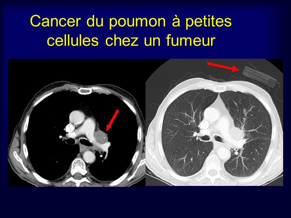Cancer du poumon à petites cellules chez un fumeur