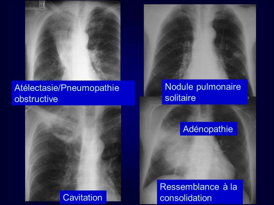 Atélectasie/Pneumopathie