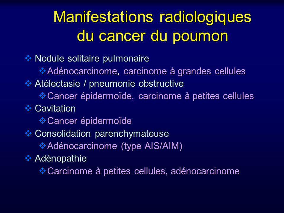 Manifestations radiologiques du cancer du poumon