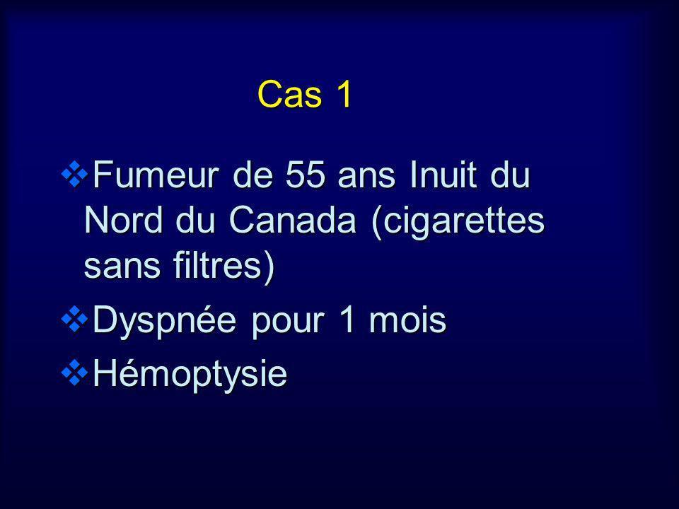 Cas 1 Fumeur de 55 ans Inuit du Nord du Canada (cigarettes sans filtres) Dyspnée pour 1 mois.