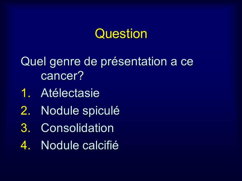 Question Quel genre de présentation a ce cancer Atélectasie