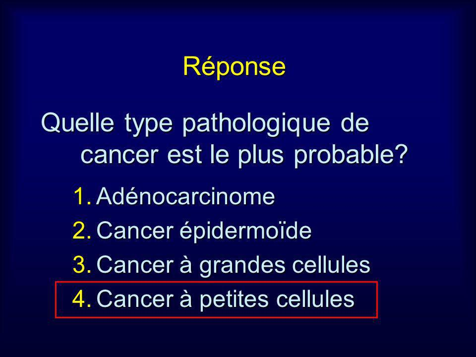 Quelle type pathologique de cancer est le plus probable