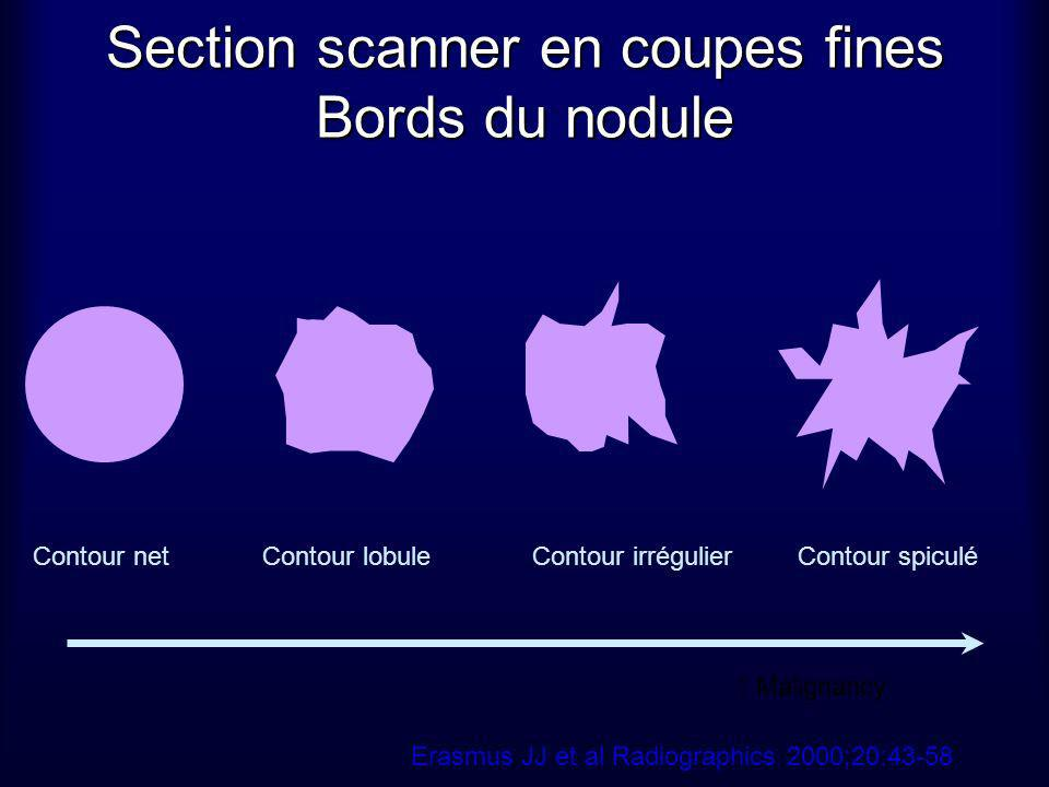 Section scanner en coupes fines Bords du nodule
