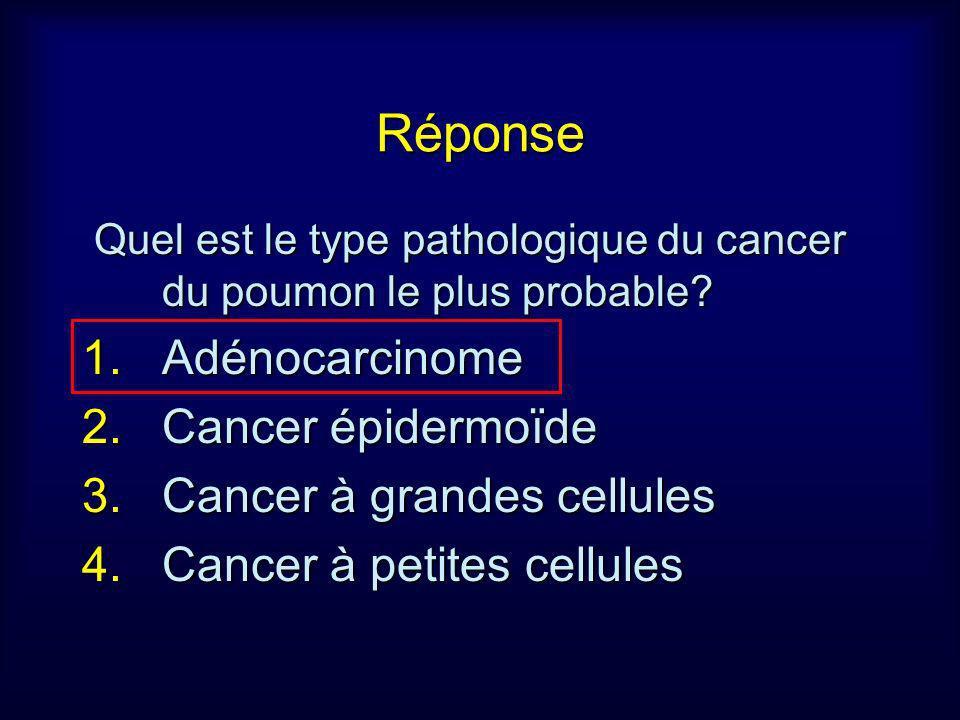 Réponse Adénocarcinome Cancer épidermoïde Cancer à grandes cellules