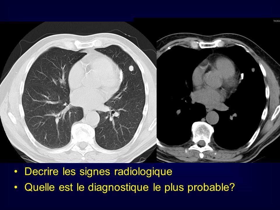 Decrire les signes radiologique
