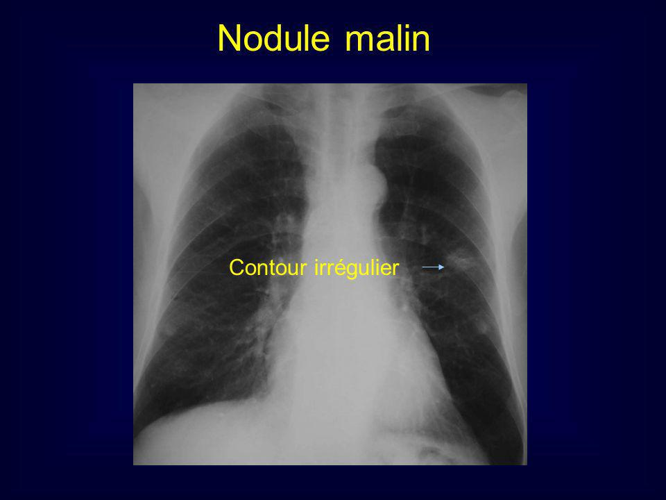 Nodule malin Contour irrégulier 9
