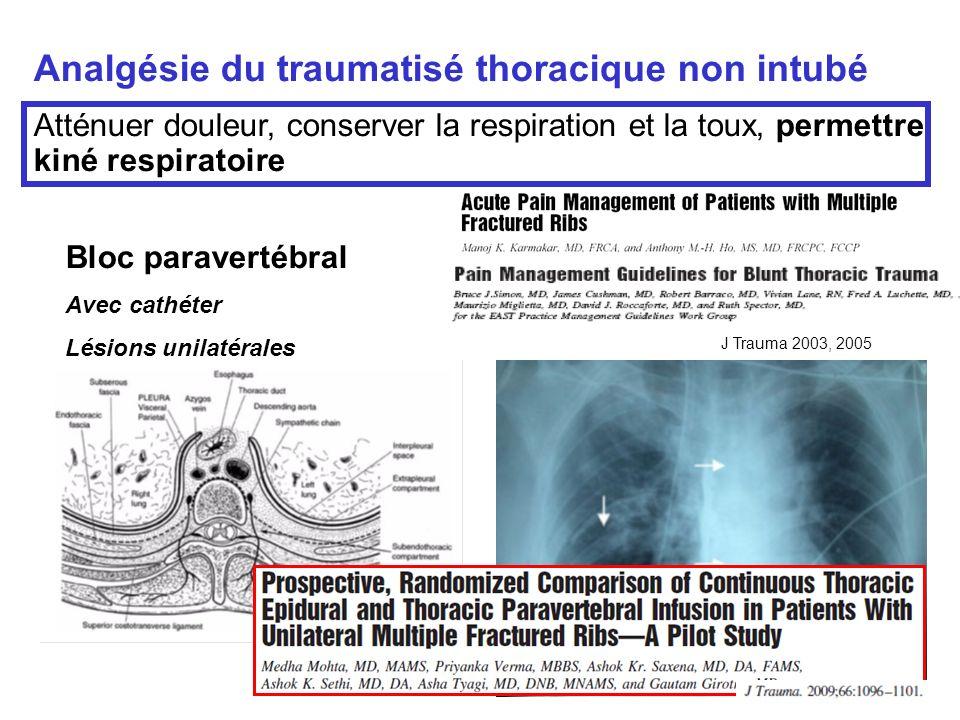 Analgésie du traumatisé thoracique non intubé