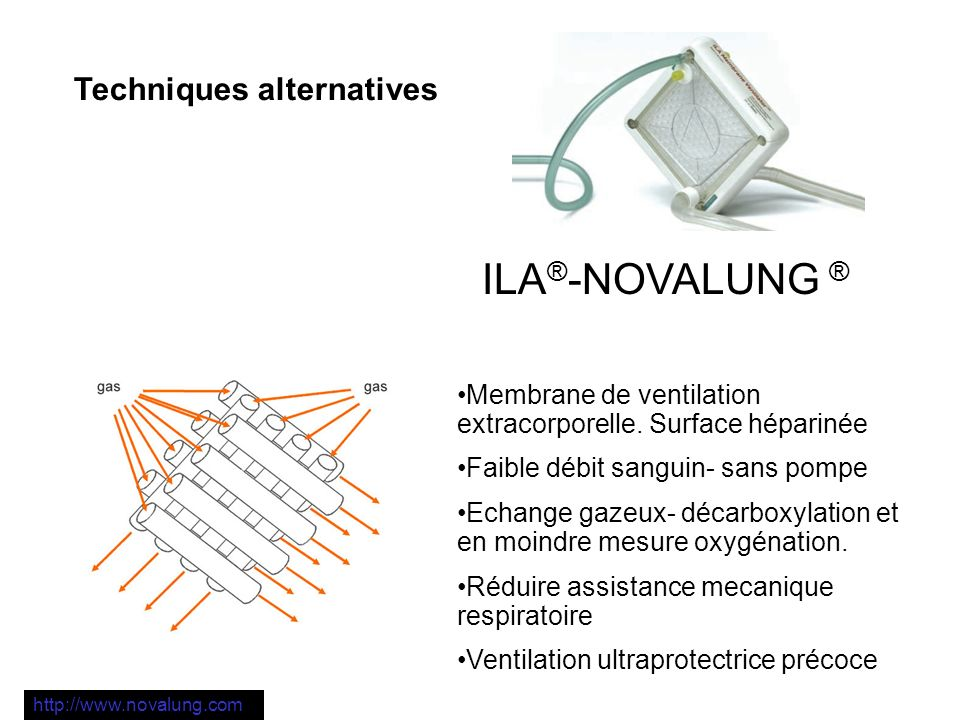 ILA®-NOVALUNG ® Techniques alternatives