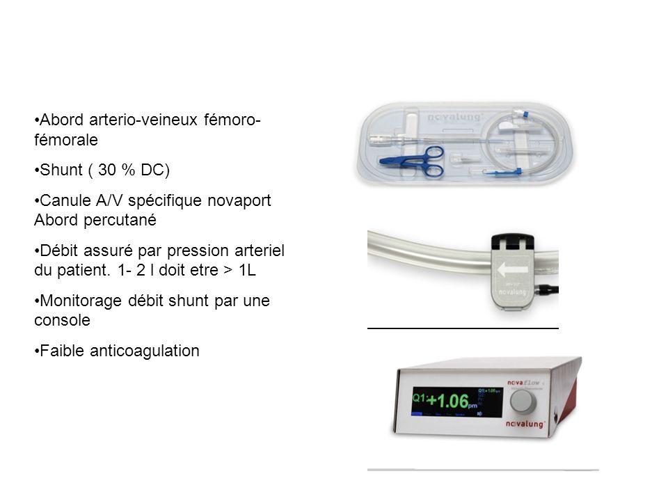 Abord arterio-veineux fémoro-fémorale