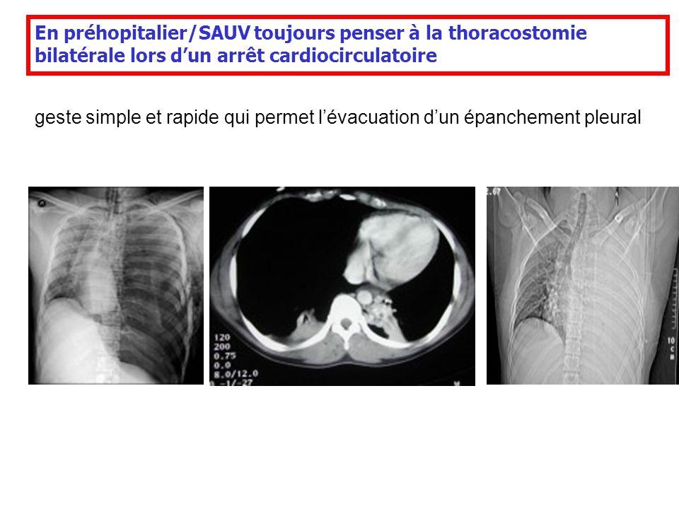 En préhopitalier/SAUV toujours penser à la thoracostomie bilatérale lors d'un arrêt cardiocirculatoire
