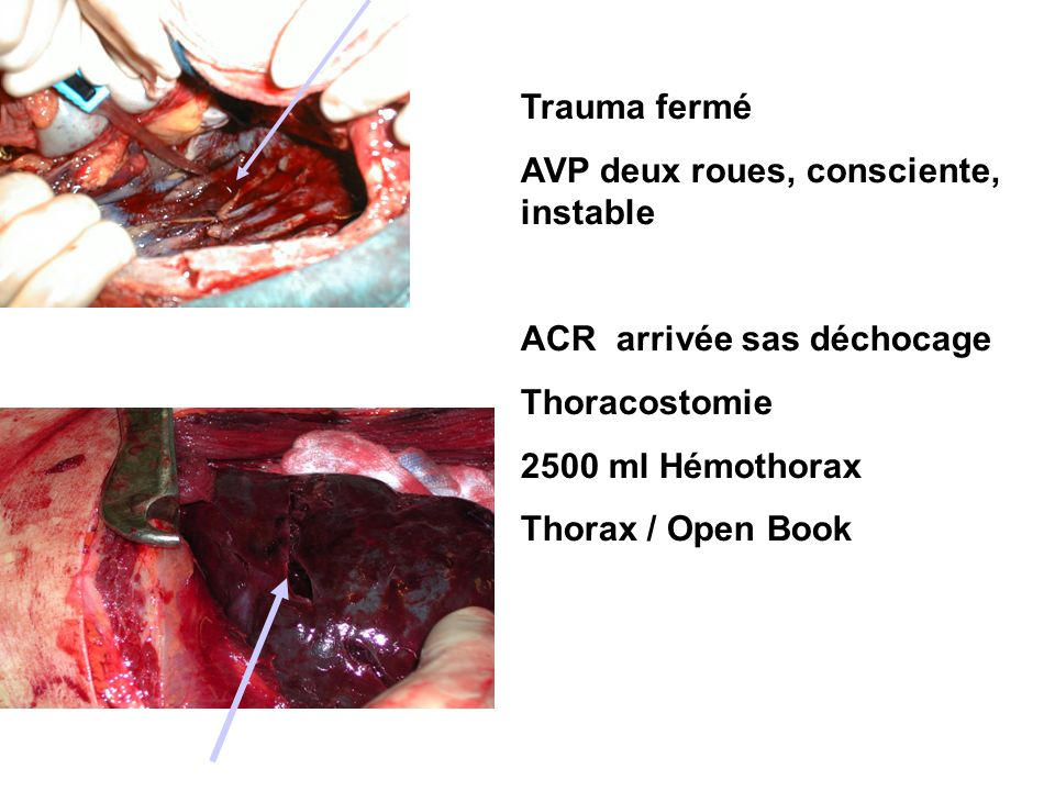 Trauma fermé AVP deux roues, consciente, instable. ACR arrivée sas déchocage. Thoracostomie. 2500 ml Hémothorax.