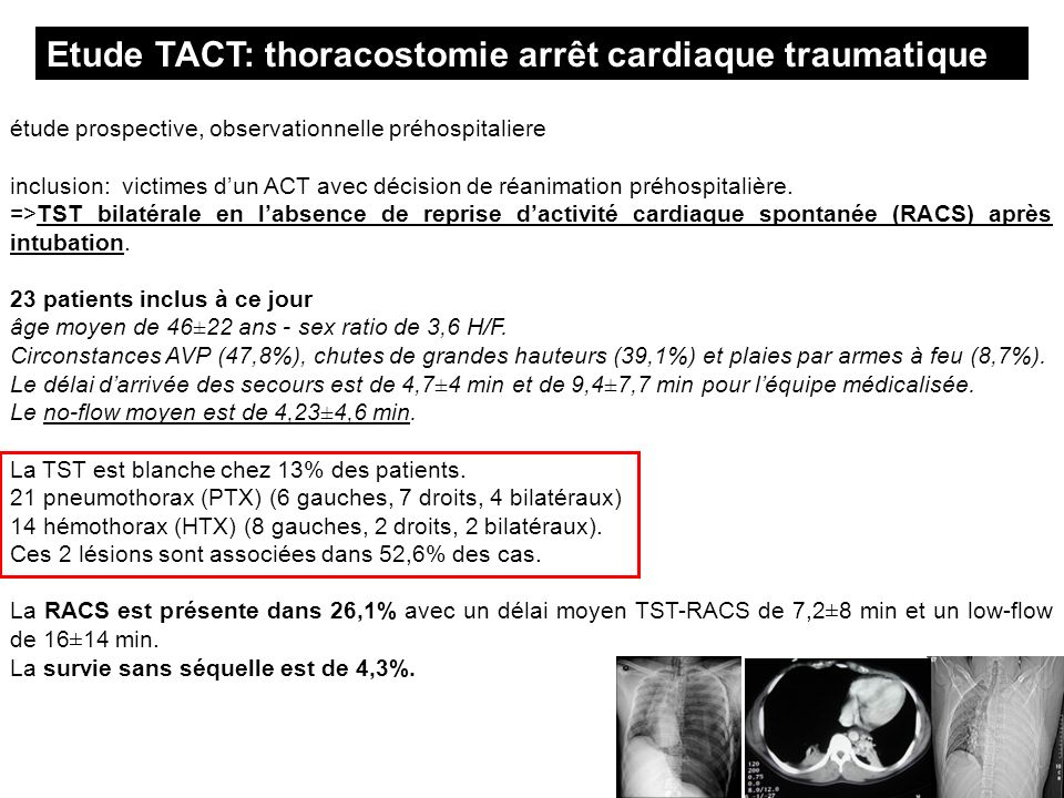 Etude TACT: thoracostomie arrêt cardiaque traumatique