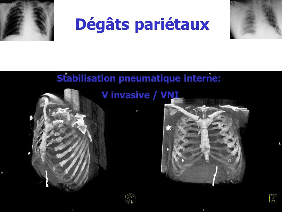 Stabilisation pneumatique interne: