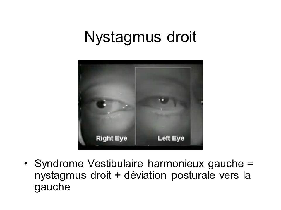 Nystagmus droit Syndrome Vestibulaire harmonieux gauche = nystagmus droit + déviation posturale vers la gauche.