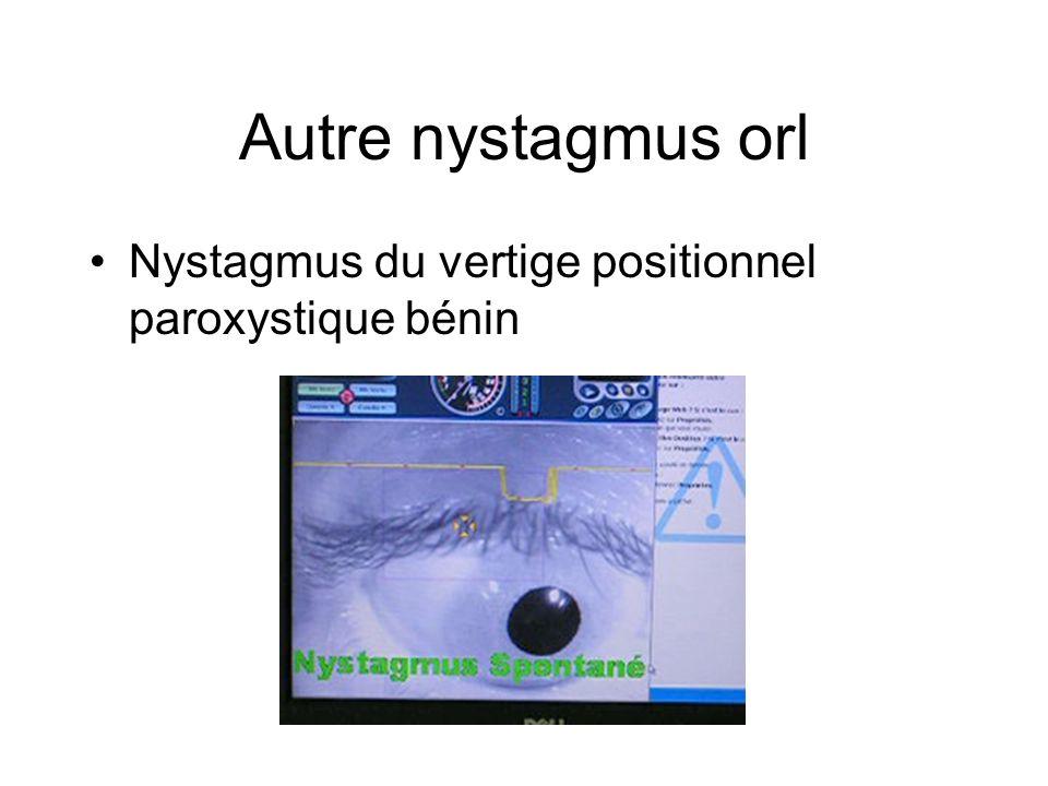 Autre nystagmus orl Nystagmus du vertige positionnel paroxystique bénin