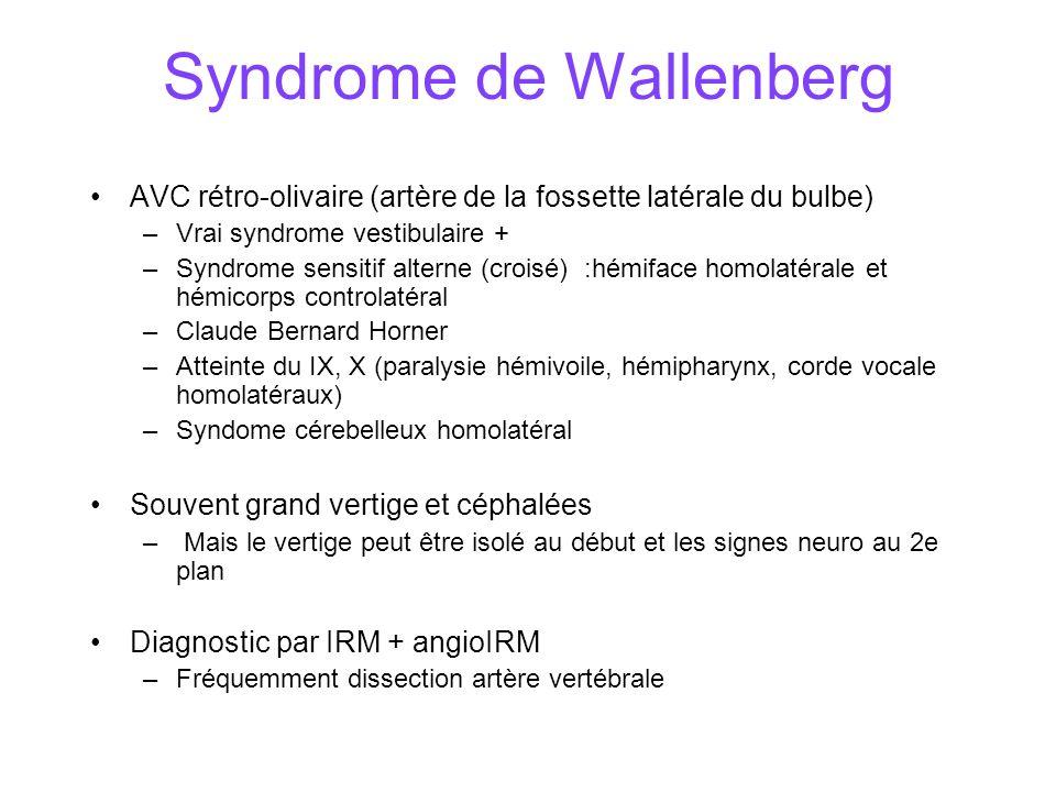 Syndrome de Wallenberg