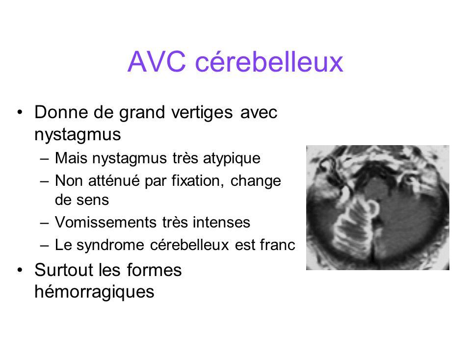 AVC cérebelleux Donne de grand vertiges avec nystagmus