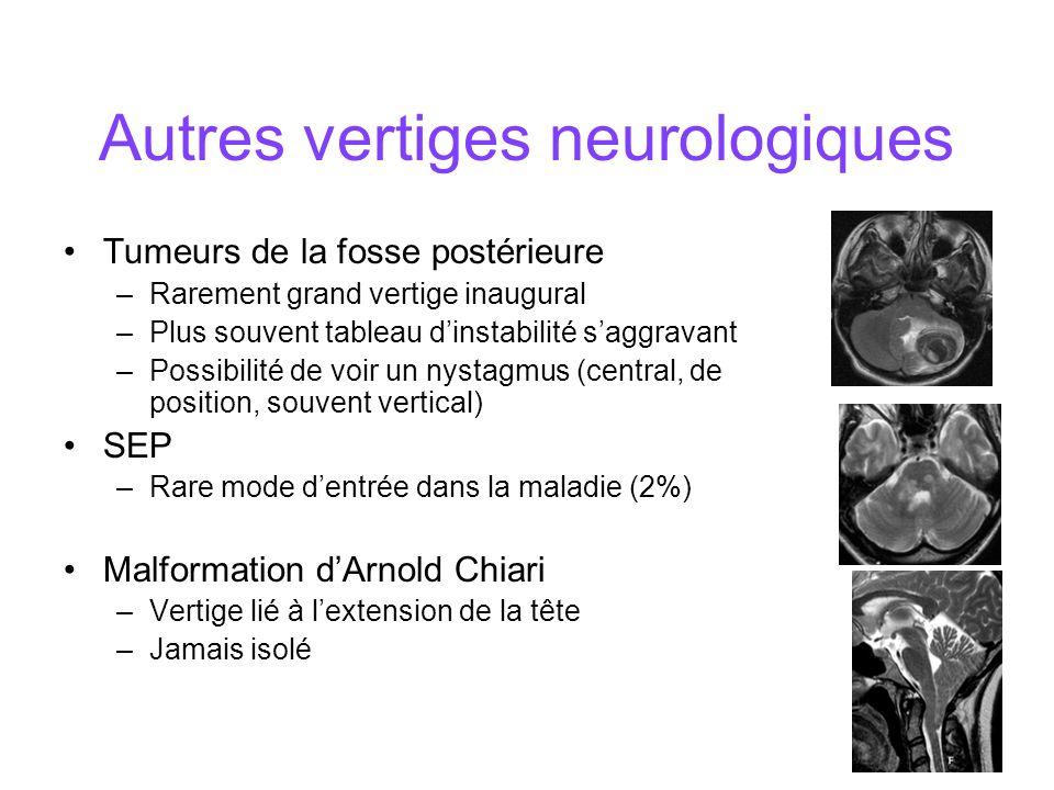 Autres vertiges neurologiques