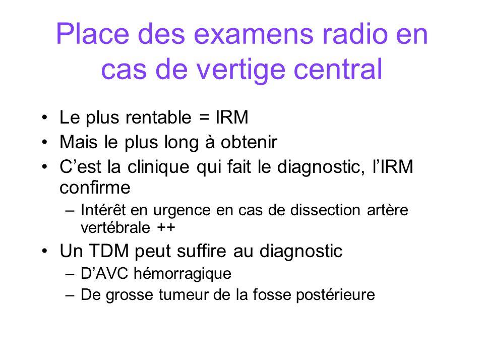 Place des examens radio en cas de vertige central