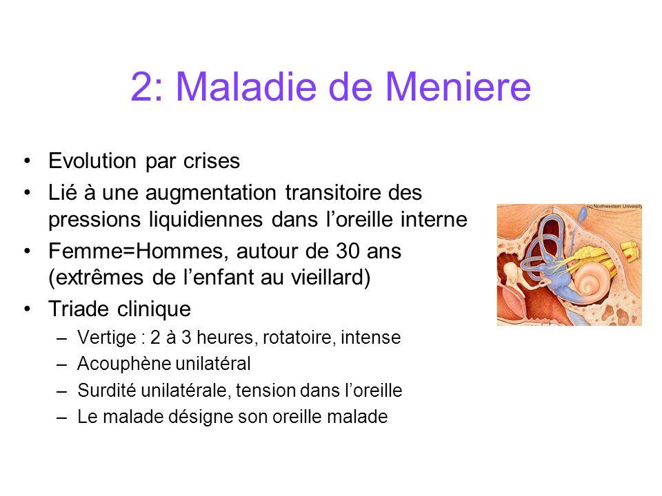 2: Maladie de Meniere Evolution par crises
