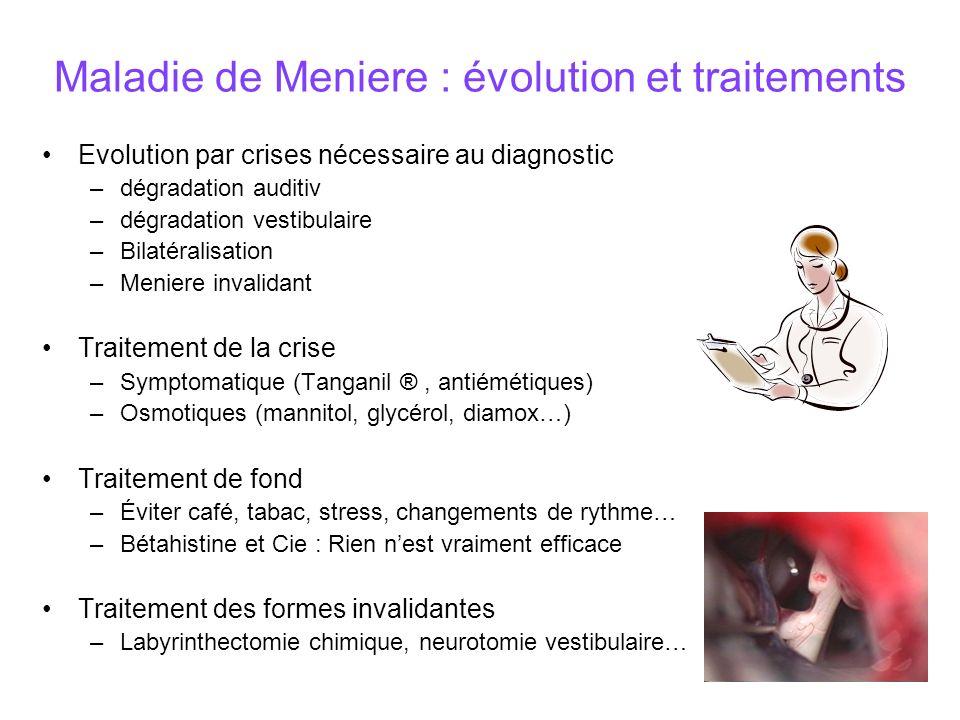 Maladie de Meniere : évolution et traitements