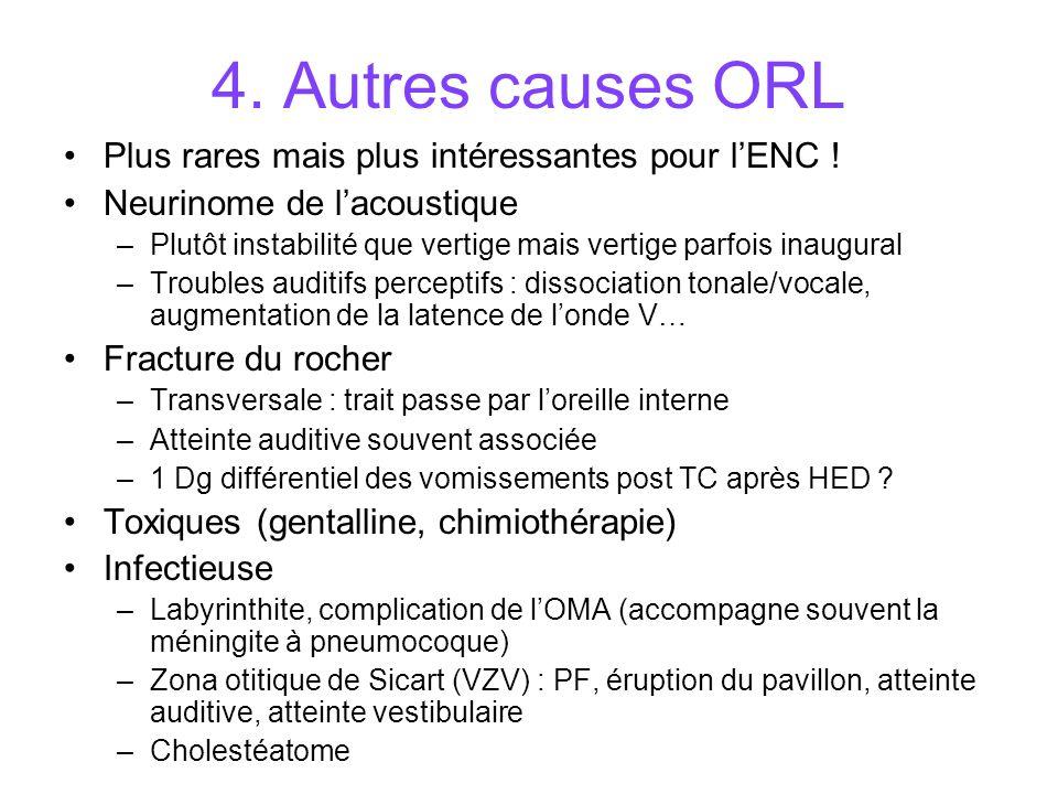4. Autres causes ORL Plus rares mais plus intéressantes pour l'ENC !
