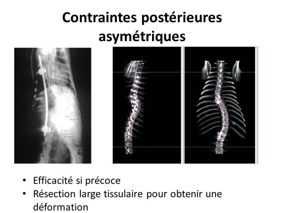 Contraintes postérieures asymétriques